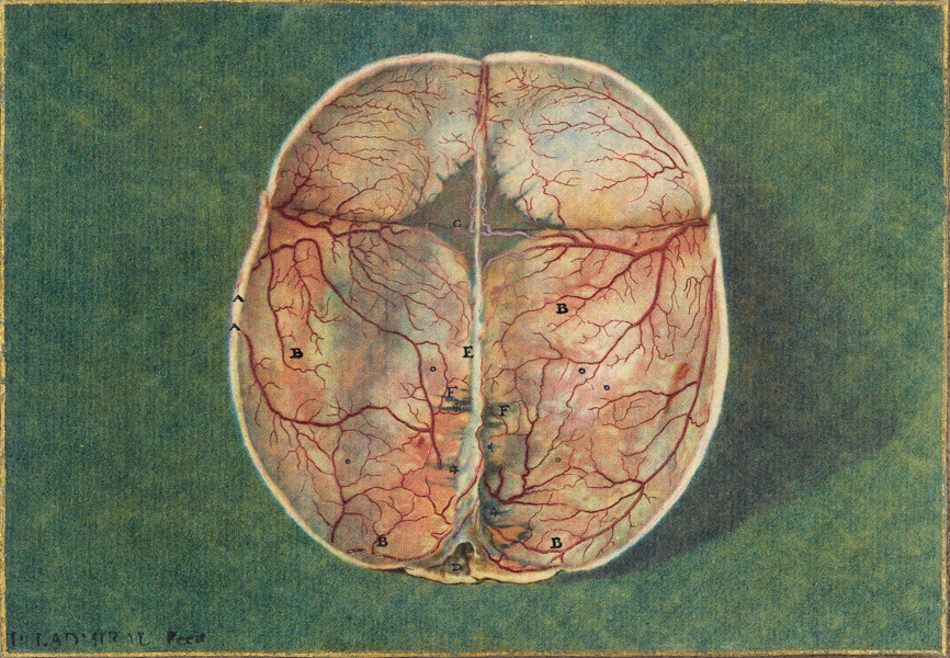 mezzotint plate of a brain